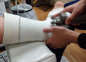 坂本接骨院・鍼灸院のギプス治療